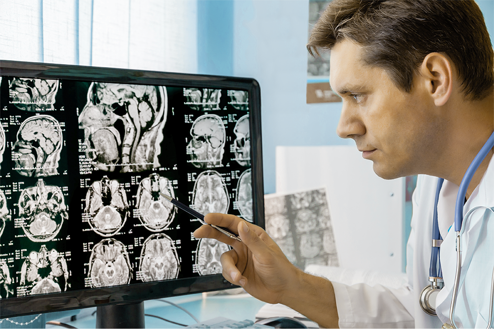 Imaging from a remote unit is transmitted to an experienced stroke physician for further management advice