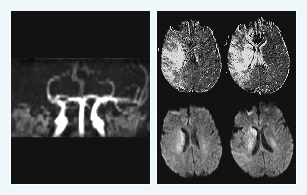 Imaging on presentation of acute ischaemic stroke
