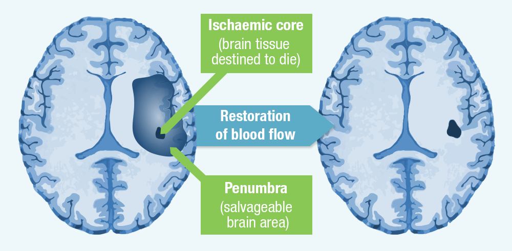 Ischaemic penumbra – Potential to reverse neurologic impairment with post-stroke therapy