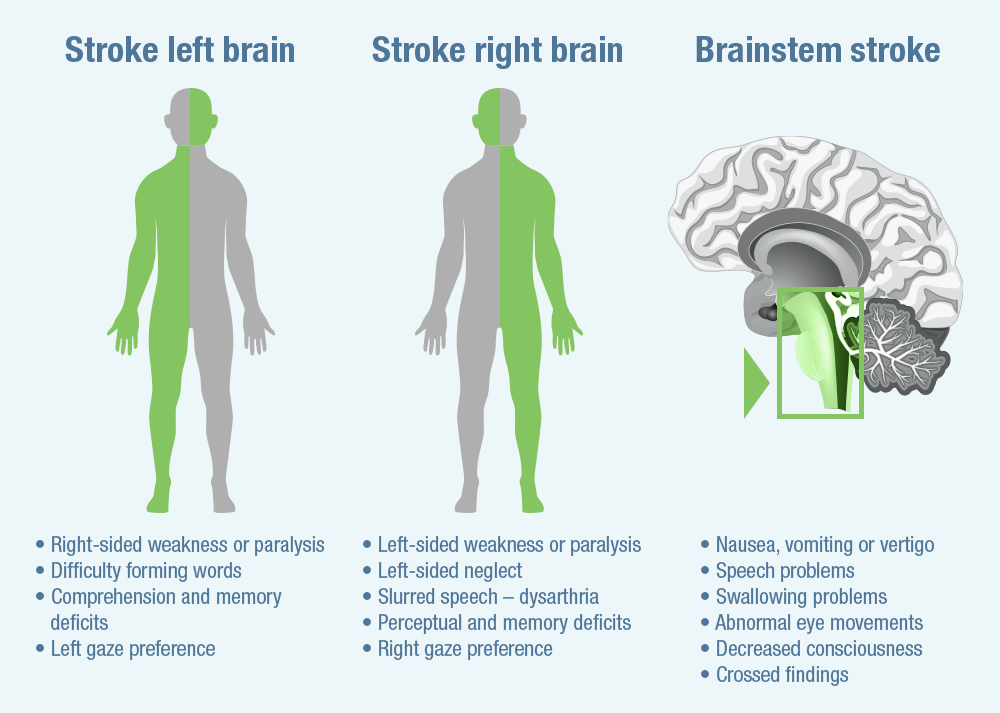 Stoke symptoms based on the location of the stroke